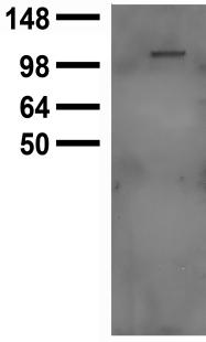 TRPC5 Antibody - Lysate of HEK-293 cells transfected with TrpC5