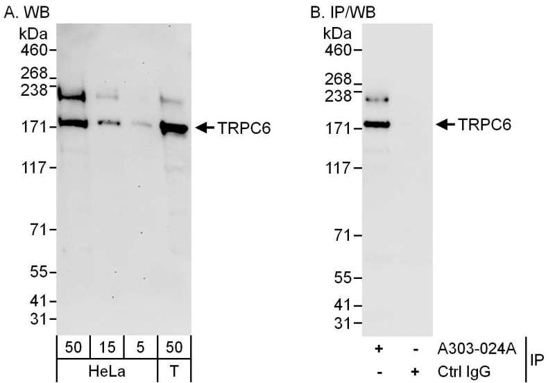 Detection of Human TRPC6 by Western Blot and Immunoprecipitation. Samples: Whole cell lysate from HeLa (5, 15 and 50 ug for WB; 1 mg for IP, 20% of IP loaded) and 293T (T; 50 ug) cells. Antibodies: Affinity purified rabbit anti-TRPC6 antibody used for WB at 0.04 ug/ml (A) and 1 ug/ml (B) and used for IP at 6 ug/mg lysate. Detection: Chemiluminescence with exposure times of 3 minutes (A) and 10 seconds (B).