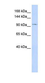 TRPC6 antibody Western blot of MCF7 cell lysate. This image was taken for the unconjugated form of this product. Other forms have not been tested.