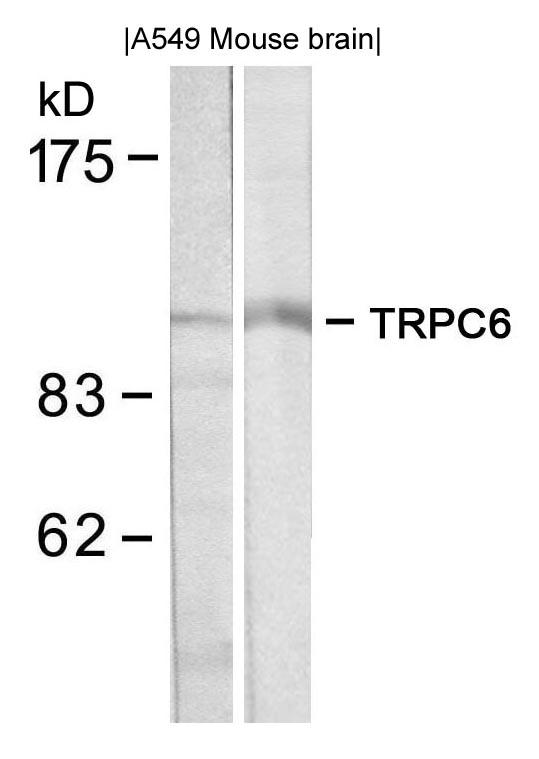 Western blot of extracts from A549 and mouse brain tissue using TRPC6 antibody.