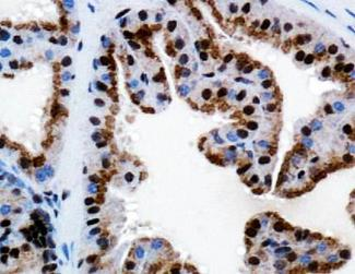 Immunohistochemistry: TRPM8 Antibody - IHC analysis of TRPM8 in mouse prostate using DAB with hematoxylin counterstain.  This image was taken for the unconjugated form of this product. Other forms have not been tested.