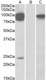 TRPV3 Antibody - HEK293 lysate (10ug protein in RIPA buffer) overexpressing Human TRPV3 with DYKDDDDK tag probed with (0.5ug/ml) in Lane A and probed with anti- DYKDDDDK Tag (1/10000) in lane C. Mock-transfected HEK293 probed (1mg/ml) in Lane B. Prima