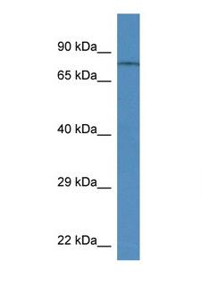 TRPV6 Antibody - TRPV6 antibody Western blot of Rat Brain lysate. Antibody concentration 1 ug/ml. This image was taken for the unconjugated form of this product. Other forms have not been tested.