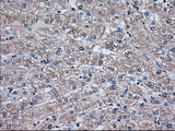 Immunohistochemical staining of paraffin-embedded Human liver tissue using anti-TBXAS1 mouse monoclonal antibody. (Dilution 1:50).