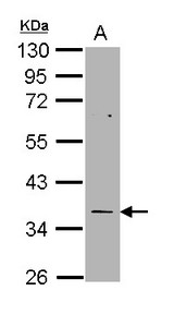 TS / Thymidylate Synthase Antibody - Sample (30 ug of whole cell lysate). A: H1299. 10% SDS PAGE. TYMS / Thymidylate Synthase antibody diluted at 1:1000.
