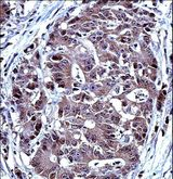 TS / Thymidylate Synthase Antibody - TYSY Antibody immunohistochemistry of formalin-fixed and paraffin-embedded human colon carcinoma followed by peroxidase-conjugated secondary antibody and DAB staining.