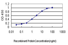 Detection limit for recombinant GST tagged TYMS is approximately 0.03 ng/ml as a capture antibody.