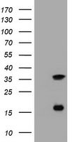 HEK293T cells were transfected with the pCMV6-ENTRY control (Left lane) or pCMV6-ENTRY TYMS (Right lane) cDNA for 48 hrs and lysed. Equivalent amounts of cell lysates (5 ug per lane) were separated by SDS-PAGE and immunoblotted with anti-TYMS.
