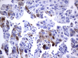 IHC of paraffin-embedded Carcinoma of Human bladder tissue using anti-TYMS mouse monoclonal antibody.
