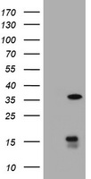 TS / Thymidylate Synthase Antibody - HEK293T cells were transfected with the pCMV6-ENTRY control (Left lane) or pCMV6-ENTRY TYMS (Right lane) cDNA for 48 hrs and lysed. Equivalent amounts of cell lysates (5 ug per lane) were separated by SDS-PAGE and immunoblotted with anti-TYMS.