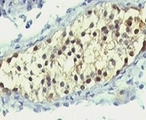 Formalin-fixed, paraffin-embedded human testicular carcinoma stained with anti-Thymidylate Synthase antibody (SPM453).  This image was taken for the unmodified form of this product. Other forms have not been tested.