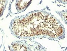 TS / Thymidylate Synthase Antibody - Formalin-fixed, paraffin-embedded human testicular carcinoma stained with Thymidylate Synthase antibody (TMS715). This image was taken for the unmodified form of this product. Other forms have not been tested.