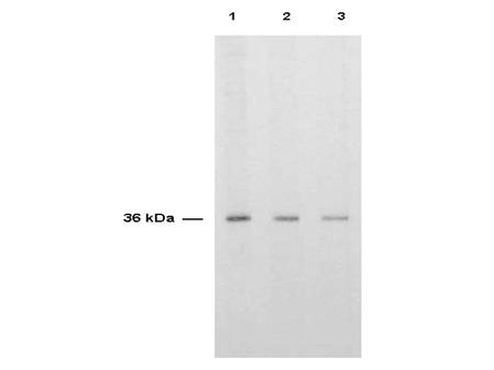 TS / Thymidylate Synthase Antibody - Anti-TS is shown to detect thymidylate synthase present in a HeLa cell extract. Each lane is estimated to contain 4 ug of protein. Lanes 1, 2 and 3 represent 1:2,000, 1:5,000 and 1:10,000 fold dilutions of the antibody. Detection was made using HRP Rabbit-a-Sheep IgG (613-4302) diluted 1:1,000 and color development using TMB (TMBM-100) substrate for approximately 4'.