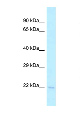 TSEN15 antibody LS-C145978 Western blot of Mouse Spleen lysate. Antibody concentration 1 ug/ml.  This image was taken for the unconjugated form of this product. Other forms have not been tested.