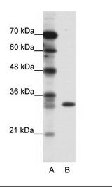 TSFM Antibody - A: Marker, B: Jurkat Cell Lysate.  This image was taken for the unconjugated form of this product. Other forms have not been tested.