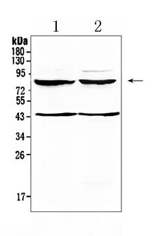 TSH Receptor / TSHR Antibody - Western blot analysis of TSH Receptor using anti-TSH Receptor antibody. Electrophoresis was performed on a 5-20% SDS-PAGE gel at 70V (Stacking gel) / 90V (Resolving gel) for 2-3 hours. The sample well of each lane was loaded with 50ug of sample under reducing conditions. Lane 1: rat brain tissue lysates, Lane 2: mouse brain tissue lysates. After Electrophoresis, proteins were transferred to a Nitrocellulose membrane at 150mA for 50-90 minutes. Blocked the membrane with 5% Non-fat Milk/ TBS for 1.5 hour at RT. The membrane was incubated with rabbit anti-TSH Receptor antigen affinity purified polyclonal antibody at 0.5 µg/mL overnight at 4°C, then washed with TBS-0.1% Tween 3 times with 5 minutes each and probed with a goat anti-rabbit IgG-HRP secondary antibody at a dilution of 1:10000 for 1.5 hour at RT. The signal is developed using an Enhanced Chemiluminescent detection (ECL) kit with Tanon 5200 system. A specific band was detected for TSH Receptor at approximately 86KD. The expected band size for TSH Receptor is at 86KD.