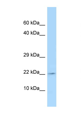 TSLP antibody Western blot of MCF7 Cell lysate. Antibody concentration 1 ug/ml.  This image was taken for the unconjugated form of this product. Other forms have not been tested.
