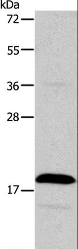 Western blot analysis of Jurkat cell, using TSLP Polyclonal Antibody at dilution of 1:850.