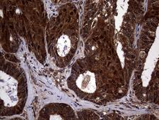 TSN / Translin Antibody - Immunohistochemical staining of paraffin-embedded Adenocarcinoma of Human ovary tissue using anti-TSN mouse monoclonal antibody. (Heat-induced epitope retrieval by 1mM EDTA in 10mM Tris buffer. (pH8.5) at 120°C for 3 min. (1:500)