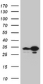 HEK293T cells were transfected with the pCMV6-ENTRY control. (Left lane) or pCMV6-ENTRY TSN. (Right lane) cDNA for 48 hrs and lysed. Equivalent amounts of cell lysates. (5 ug per lane) were separated by SDS-PAGE and immunoblotted with anti-TSN. (1:2000)