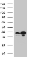 TSN / Translin Antibody - HEK293T cells were transfected with the pCMV6-ENTRY control. (Left lane) or pCMV6-ENTRY TSN. (Right lane) cDNA for 48 hrs and lysed. Equivalent amounts of cell lysates. (5 ug per lane) were separated by SDS-PAGE and immunoblotted with anti-TSN. (1:2000)