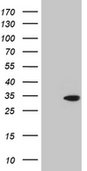 TSN / Translin Antibody - HEK293T cells were transfected with the pCMV6-ENTRY control. (Left lane) or pCMV6-ENTRY TSN. (Right lane) cDNA for 48 hrs and lysed