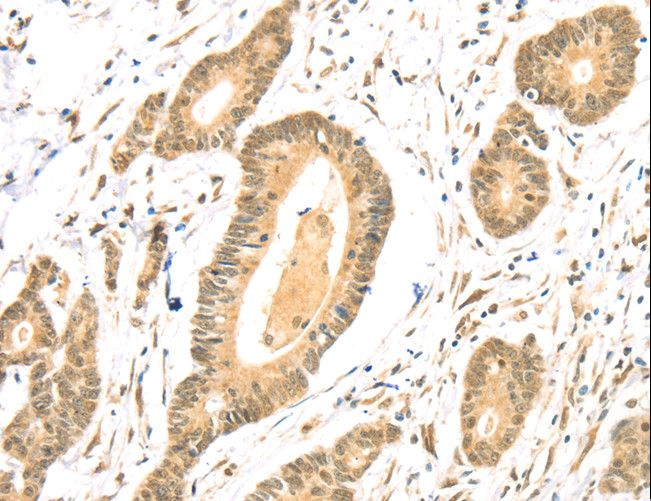 TSPAN13 / TM4SF13 Antibody - Immunohistochemistry of paraffin-embedded Human colon cancer using TSPAN13 Polyclonal Antibody at dilution of 1:35.