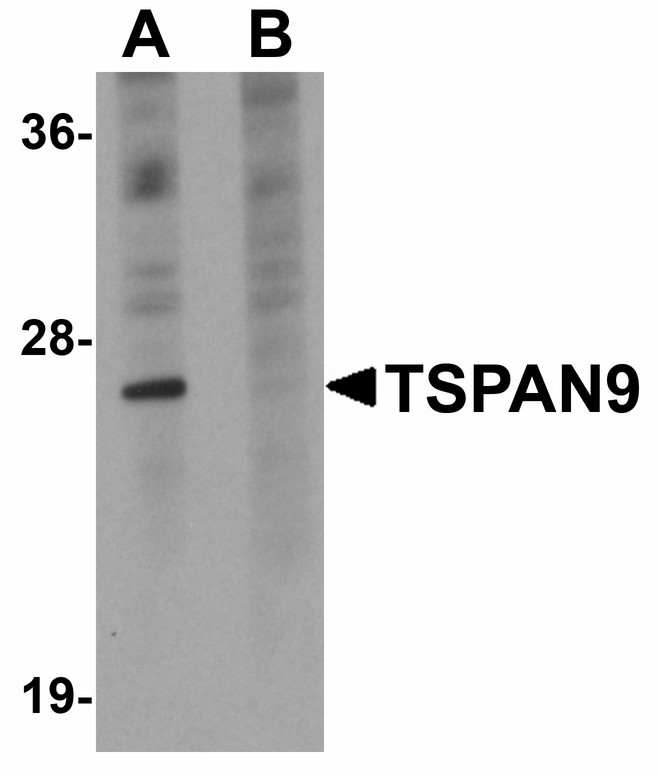 Western blot of TSPAN9 in EL4 cell lysate with TSPAN9 antibody at 1 ug/ml in (A) the absence and (B) the presence of blocking peptide.