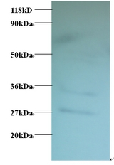 Western blot of GDP-L-fucose synthase Antibody at 2 ug/ml + EC109 whole cell lysate at 20 ug/ml. Secondary: Goat polyclonal to Rabbit IgG at 1:15000 dilution. Predicted band size:35 kDa. Observed band size:35 kDa. Additional bands at:27 kDa. We are unsure as to the identity of this extra band.  This image was taken for the unconjugated form of this product. Other forms have not been tested.