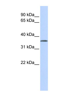TSTA3 antibody Western blot of MCF7 cell lysate. This image was taken for the unconjugated form of this product. Other forms have not been tested.