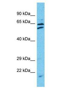 TTC24 Antibody - TTC24 antibody Western Blot of HepG2. Antibody dilution: 1 ug/ml.  This image was taken for the unconjugated form of this product. Other forms have not been tested.