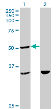 Western Blot analysis of TTC4 expression in transfected 293T cell line by TTC4 monoclonal antibody (M09), clone 1E10.Lane 1: TTC4 transfected lysate(44.7 KDa).Lane 2: Non-transfected lysate.