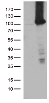 TTC7A Antibody - HEK293T cells were transfected with the pCMV6-ENTRY control. (Left lane) or pCMV6-ENTRY TTC7A. (Right lane) cDNA for 48 hrs and lysed. Equivalent amounts of cell lysates. (5 ug per lane) were separated by SDS-PAGE and immunoblotted with anti-TTC7A. (1:2000)
