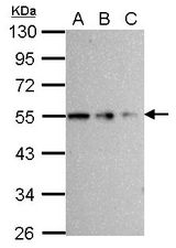 Sample (whole cell lysate) A: 293T 20 ug B: 293T 10 ug C: 293T 5 ug 10% SDS PAGE TUBB / Beta Tubulin antibody diluted at 1:10000
