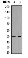 TUBB2A / Tubulin Beta 2A Antibody - Western blot analysis of Beta2A-tubulin expression in mouse brain (A); rat brain (B) whole cell lysates.