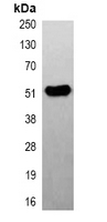 TUBB2A / Tubulin Beta 2A Antibody - Immunoprecipitation of Beta2A-tubulin from 0.5mg mouse brain whole cell extract lysate; using Anti-Beta2A-tubulin Antibody.