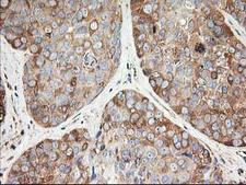 TUBB4 / Tubulin Beta 4 Antibody - IHC of paraffin-embedded Adenocarcinoma of Human breast tissue using anti-TUBB4 mouse monoclonal antibody.