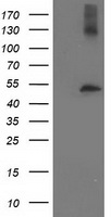 TUBB4 / Tubulin Beta 4 Antibody - HEK293T cells were transfected with the pCMV6-ENTRY control (Left lane) or pCMV6-ENTRY TUBB4 (Right lane) cDNA for 48 hrs and lysed. Equivalent amounts of cell lysates (5 ug per lane) were separated by SDS-PAGE and immunoblotted with anti-TUBB4.
