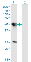 Western Blot analysis of TUFT1 expression in transfected 293T cell line by TUFT1 monoclonal antibody (M01), clone 2C10.Lane 1: TUFT1 transfected lysate (Predicted MW: 44.3 KDa).Lane 2: Non-transfected lysate.