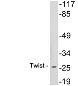 TWIST1 / TWIST Antibody - Western blot analysis of lysates from Jurkat cells , using Twist antibody.