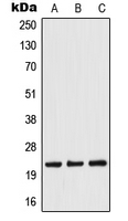 TWIST1 / TWIST Antibody - Western blot analysis of TWIST expression in Jurkat (A); Raw264.7 (B); rat liver (C) whole cell lysates.