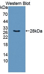 Western blot of TXLNA / Alpha Taxilin antibody.