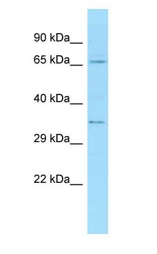 TXLNA / Alpha Taxilin antibody Western Blot of HeLa.  This image was taken for the unconjugated form of this product. Other forms have not been tested.