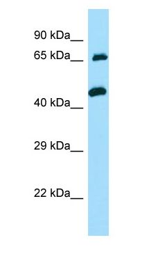 TXLNA / Alpha Taxilin antibody Western Blot of Jurkat.  This image was taken for the unconjugated form of this product. Other forms have not been tested.
