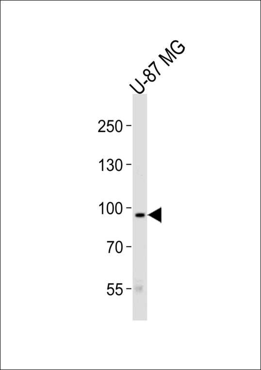TYRO3 Antibody - Western blot of lysate from U-87 MG cell line, using TYRO3 Antibody. Antibody was diluted at 1:1000 at each lane. A goat anti-rabbit IgG H&L (HRP) at 1:5000 dilution was used as the secondary antibody. Lysate at 35ug per lane.