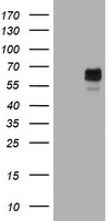 HEK293T cells were transfected with the pCMV6-ENTRY control (Left lane) or pCMV6-ENTRY TYR (Right lane) cDNA for 48 hrs and lysed. Equivalent amounts of cell lysates (5 ug per lane) were separated by SDS-PAGE and immunoblotted with anti-TYR.