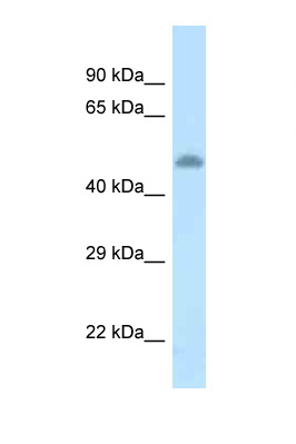 TAT / Tyrosine Aminotransferase antibody LS-C145603 Western blot of Rat Brain lysate. Antibody concentration 1 ug/ml.  This image was taken for the unconjugated form of this product. Other forms have not been tested.