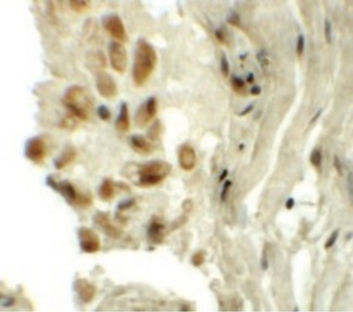 TYW1 Antibody - Immunohistochemistry of TYW1 in human lung tissue with TYW1 antibody at 5 ug/ml.