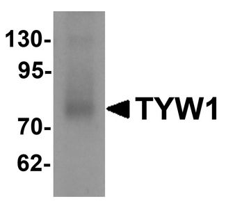 TYW1 Antibody - Western blot analysis of TYW1 in human lung tissue lysate with TYW1 antibody at 1 ug/ml.