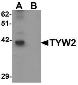 Western blot analysis of TYW2 in K562 cell lysate with TYW2 antibody at 0.5 ug/ml in (A) the absence and (B) the presence of blocking peptide.